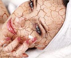 עור פנים יבש